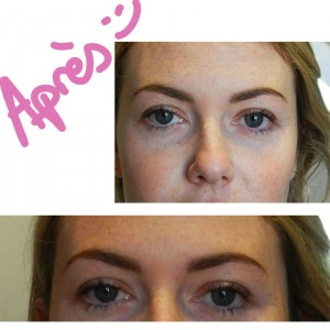 Restructuration sourcils Appart 22